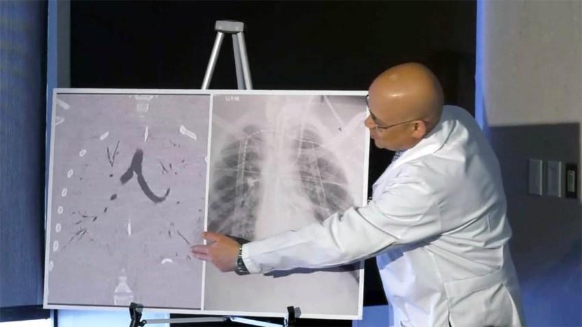 111219 Vaping Lung Transplant NATL