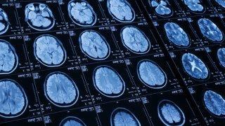 Brain-Generic