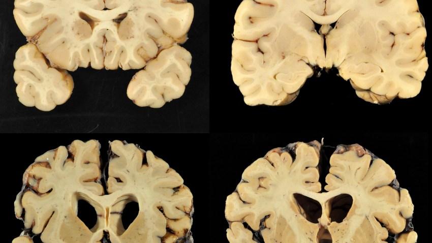 Science Says Football Brain Disease