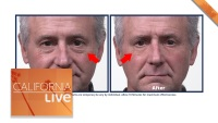 Shrink Wrinkles and Under-Eye Bags in 10 Minutes! (Sponsored)
