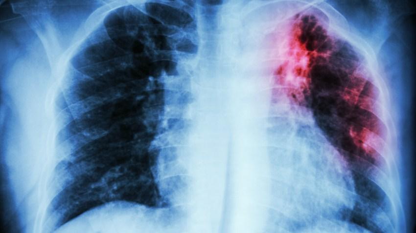 tuberculosis-7