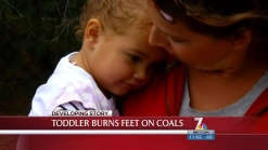 Tot Burned by Hot Coals Left on Beach
