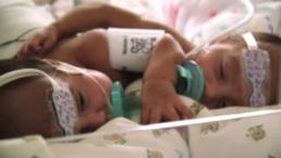Twins Born Conjoined at the Heart