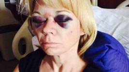 Woman Injured By Foul Ball Warns Others