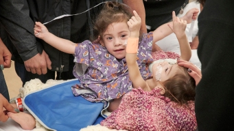 Conjoined Twins Separated After 17-Hour Surgery in California