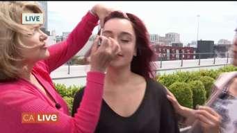 Treatment for Wrinkles & Sun Damage