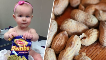 Peanut-Based Foods Help Babies Prevent Allergies: NIH