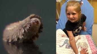Texas Child Hospitalized After Venomous Caterpillar Sting