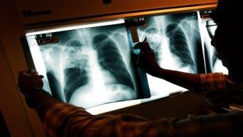 TB Cases at 2 Local Schools