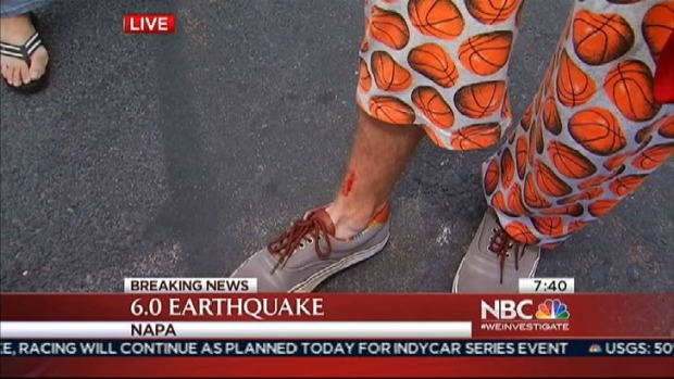 Napa Resident Describes Injury to Leg After Earthquake