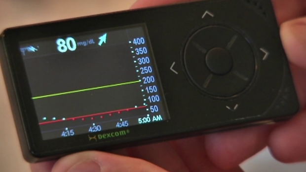 SD Company Technology Monitors Blood Sugar From Phone