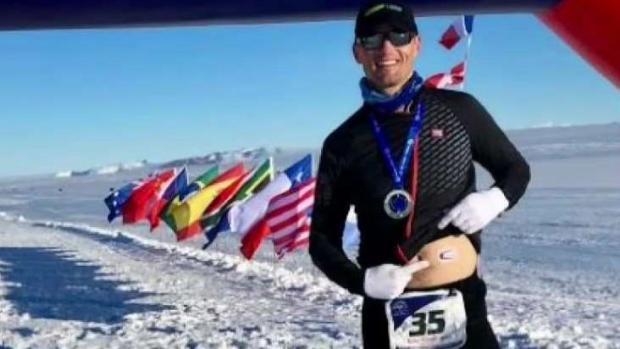 Your Corner: Man With Type 1 Diabetes Runs 7 Marathons
