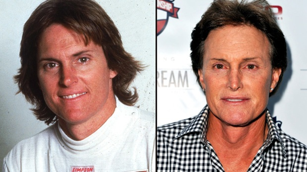 [NATL] Plastic Surgery: Celebrities Then and Now