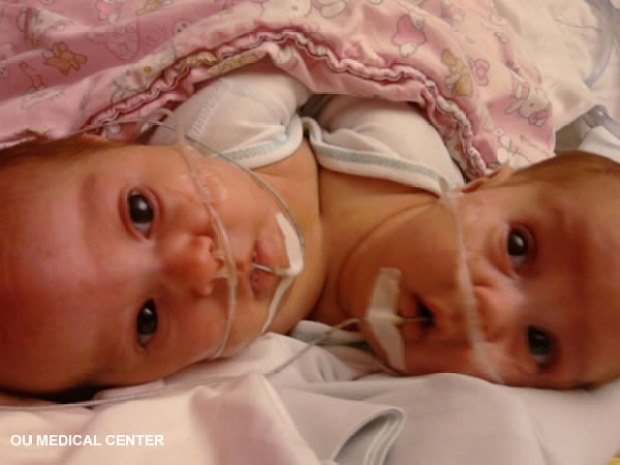 Conjoined Twins Separated
