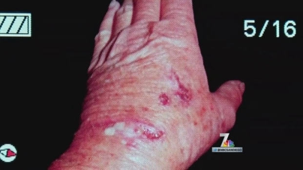 Animal Control Investigating Serra Mesa Dog Attacks