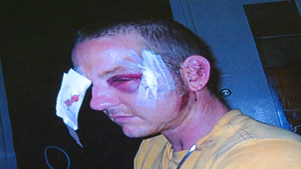 [DGO] Shoplifter Claims He Was Beaten by Store Security Guard