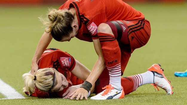 World Cup Collision Sparks Concussion Concerns