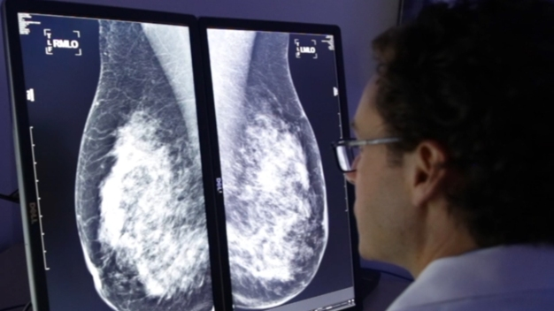 San Diego Company's Mammogram Software Wins FDA Approval