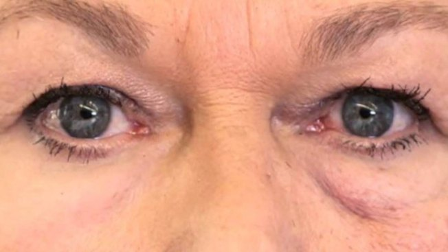 Facelift in a Bottle? Researchers Say 'Second Skin' Tightens Baggy Eyes