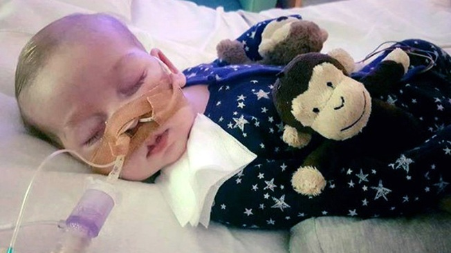 Charlie Gard's parents say baby's life support to be switched off
