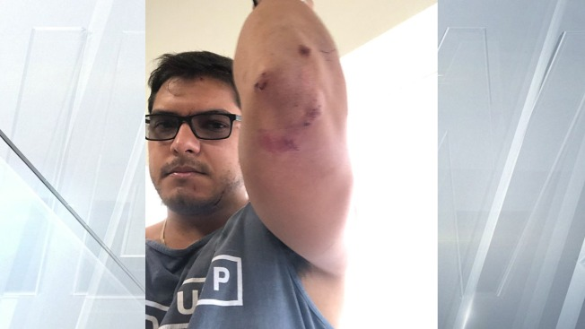 Pit Bull Attack on Man and Dog in Pacific Beach