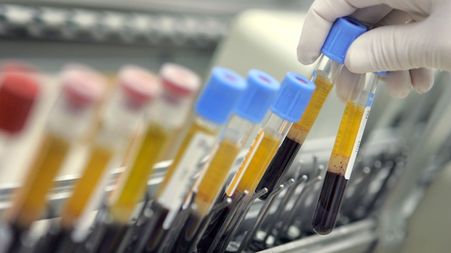 Israeli Company That Claims Cancer Cure Faces Years of Testing for US Market — Even if it Works