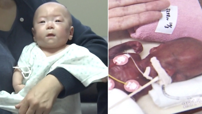 This Baby Was Born at 9 Ounces. 5 Months Later, He's Ready to Go Home