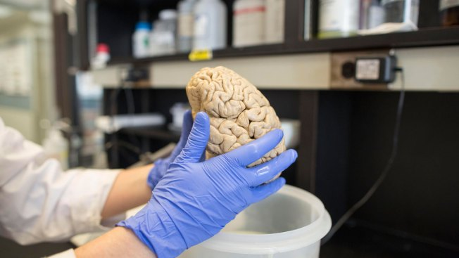 Experimental Drug Slows Alzheimer's Decline, Researchers Report