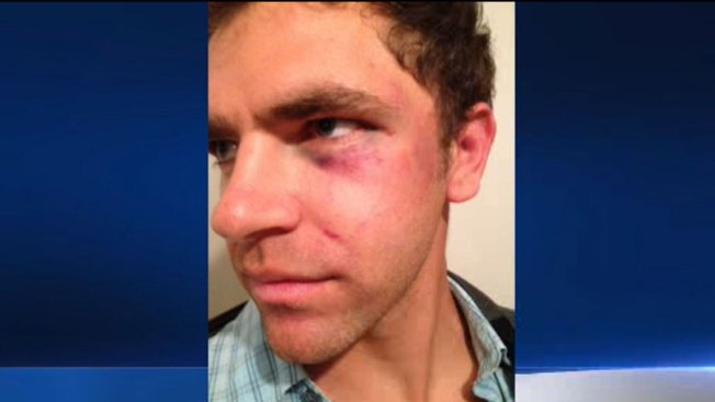 LA-Area Police Officers Accused of Beating Deaf Man