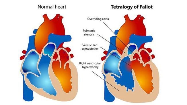 Researchers Receive $3.1M to Study Heart Condition