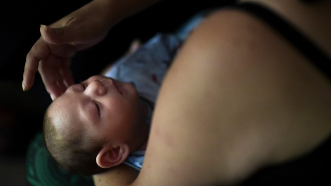 Zika Birth Defects in US Territories Similar to Other Places