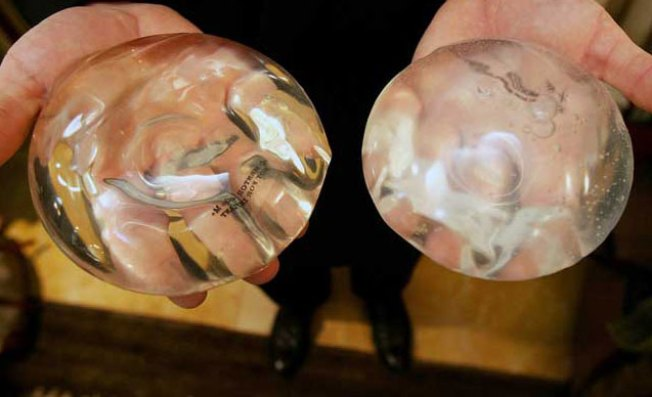 Breast Implants Won't Last a Lifetime: Feds