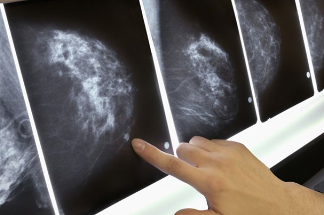 Baffled by Breast Cancer Screening Advice?