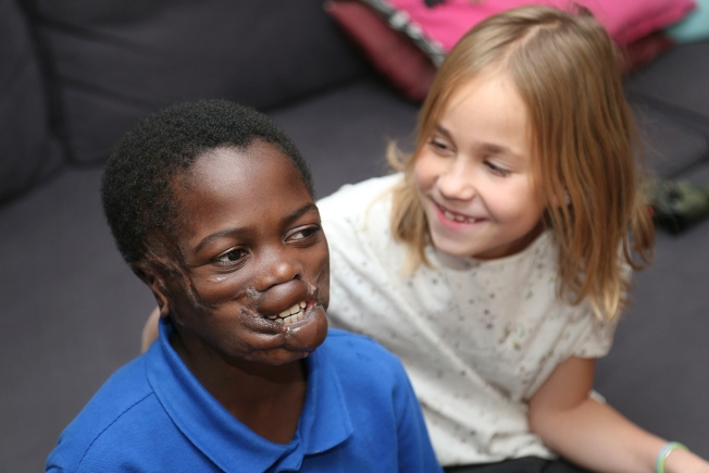 Boy Disfigured by Chimps in Africa Thrives After US Surgery