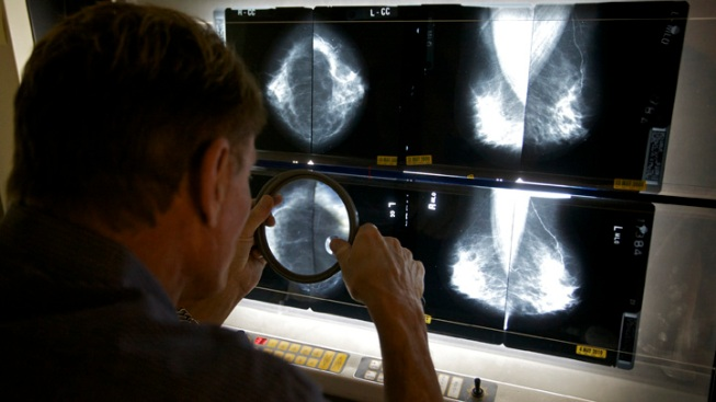 Gene Analysis Offers Breast Cancer Breakthrough