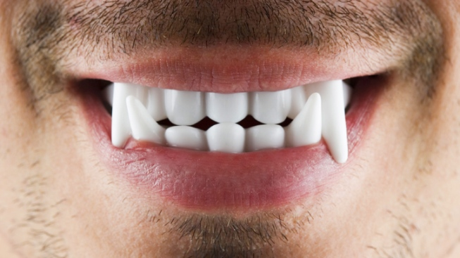 Wanted: Suspect with 'Vampire Teeth'