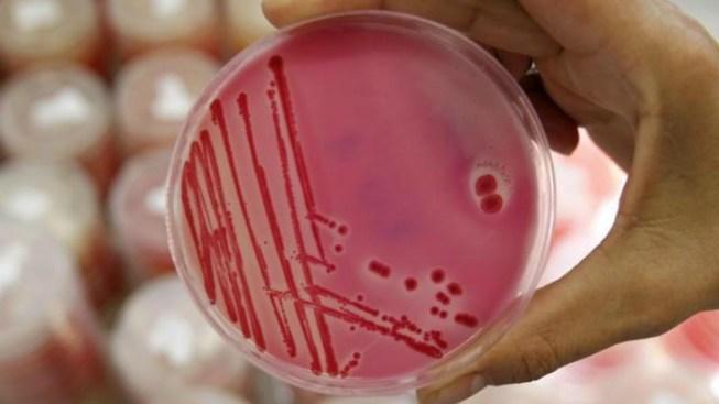 CA Man Dies From Salmonella