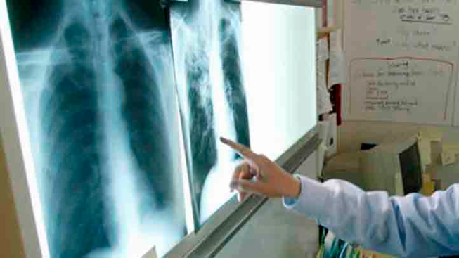 First Tuberculosis Case Reported in County