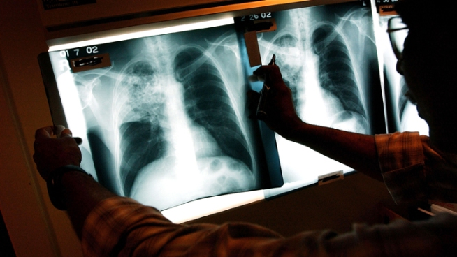 "New ""Totally Drug-Resistant Tuberculosis"" Strain Found"