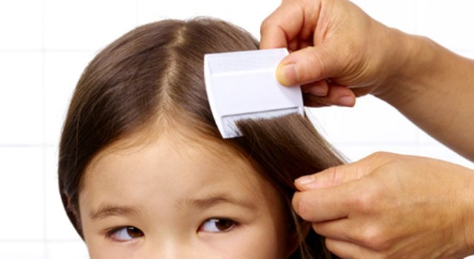 Parents Disagree on Lice Policy